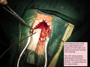 Surgery 1