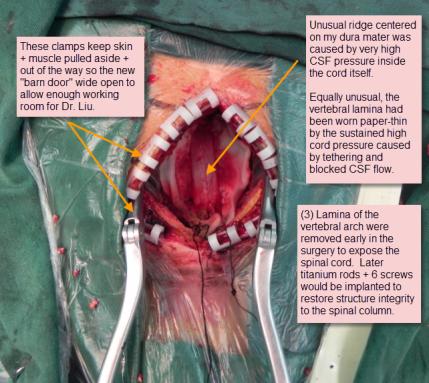 Surgery 3