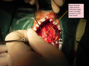 Surgery 4